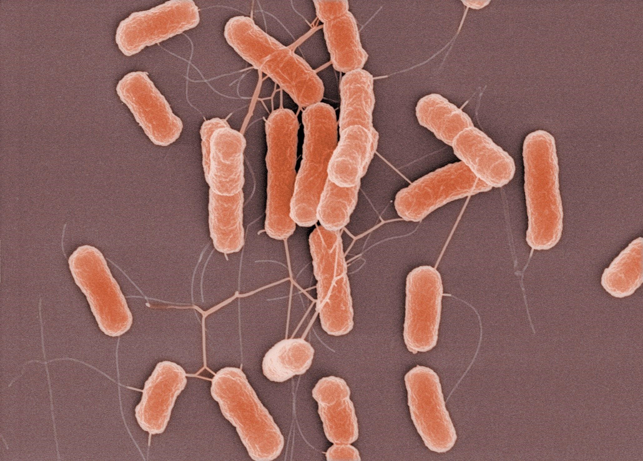 Photograph of E. coli