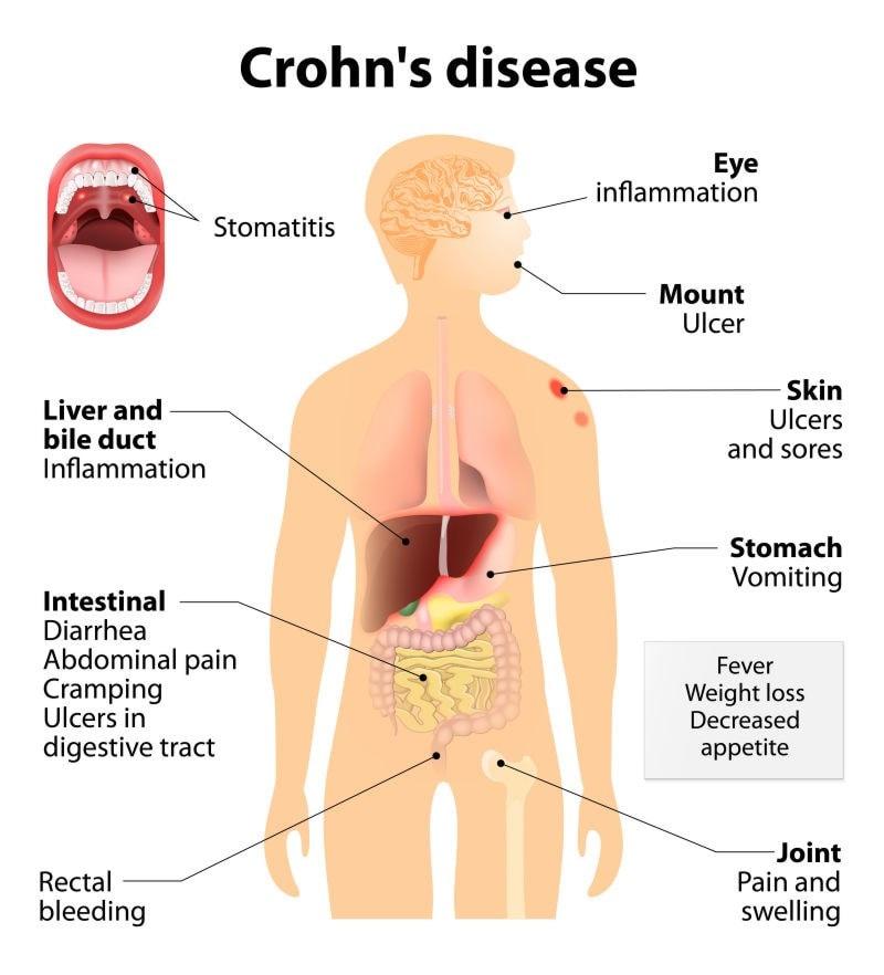 diagram highlighting symptoms crohns disease