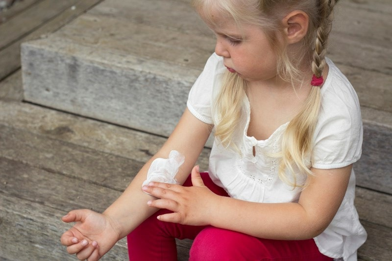 young girl with eczema